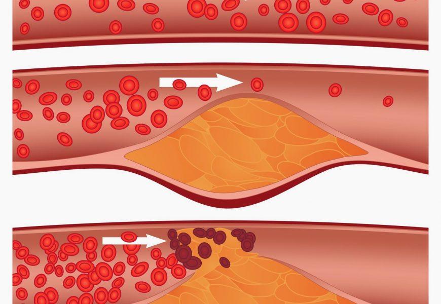 Breve y humilde explicación sobre el colesterol